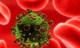 """Je nemoc AIDS """"laboratorní"""" nemoc?"""