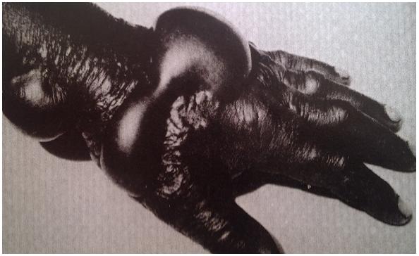 Mnoho pokusných subjektů Jednotky 731 bylo infikováno snětí, vysoce nakažlivou chorobou, během níž dochází k vytvoření černých podkožních vředů, k otravě krve a k horečce, která usmrtí devadesát procent nakažených. V rámci těchto experimentů byly subjekty přivázány ke sloupu a poblíž nich byly odpáleny bomby se snětí, aby se zjistilo, jak účinně se nemoc šíří při kontrolovaném výbuchu.